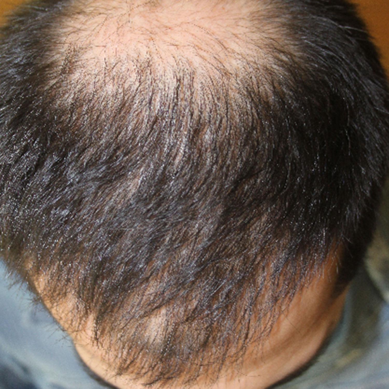 Пересадка волос в иране цены